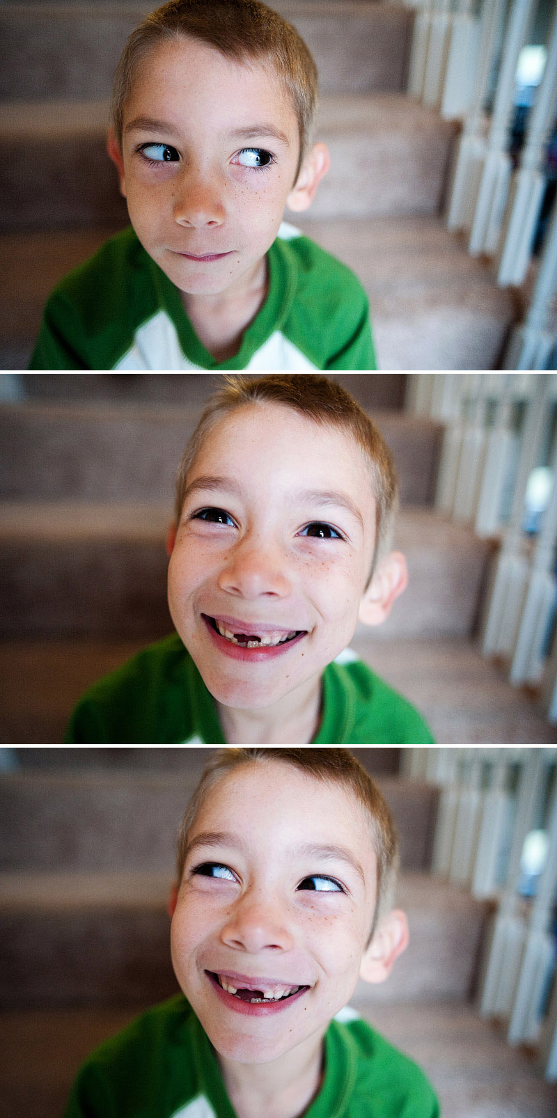 Portraits of a boy missing his two front teeth.